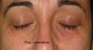 dermatitis palpebral