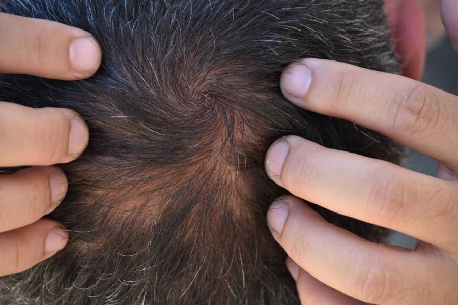 Cosmética a medida para alopecia con ProstaquinonTM