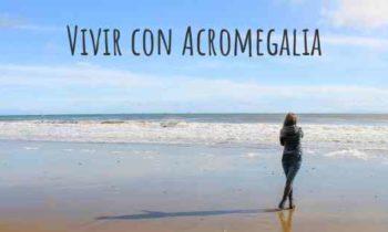 Acromegalia. Campaña #miratusfotos