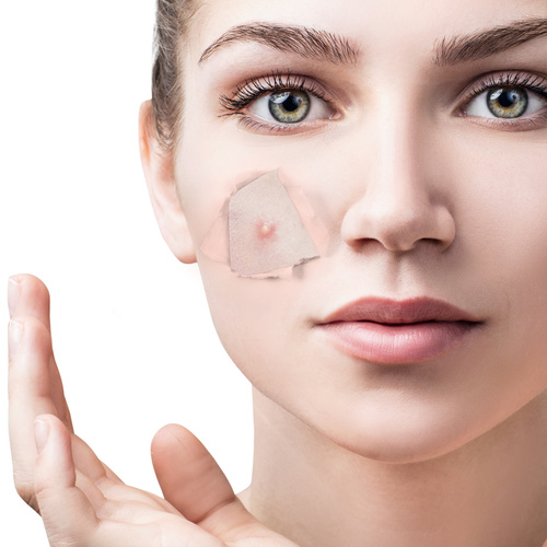 Tengo acné. ¿Funcionan los probióticos?