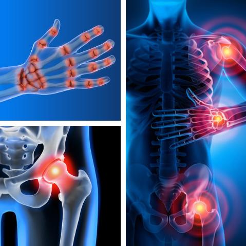 ¿Qué hay para que la artrosis no vaya a más?