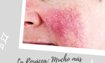 La Rosácea: Mucho más que el rubor de la piel