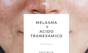 Melasma y Ácido Tranexámico
